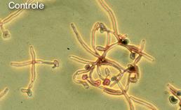 Experiment schimmeldodende eigenschap histatine-5, controle