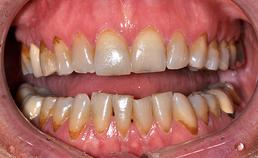 Dentitie vrouw met drogemondklachten