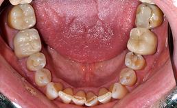 Occlusaal aanzicht mandibulaire dentitie bij drogemondklachten