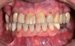 Dentitie in occlusie van man met drogemondklachten