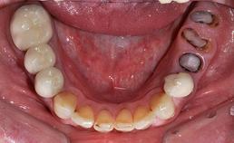Occlusaal aanzicht mandibulaire dentitie bij droge mond