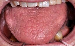 Droge tong met diepe fissuren