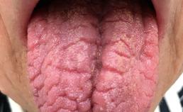 Droge tong door hyposialie