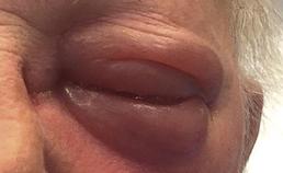 Zwelling rond oog en ernstige oogontsteking
