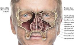Schematische weergave van een ethmoidectomie