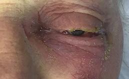 Verminderde zwelling oog na medicatie intra- en extraveneus