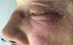 En-profiel duidelijke afname oogontsteking en zwelling