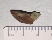 Achterblijven van tandheelkundig afdrukmateriaal bij schisispatiënten met een palatumdefect
