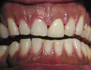 Serie: Medicamenten en mondzorg. Hyperpigmentatie van de orale slijmvliezen door afamelanotide
