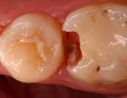 Het cariësremmende effect van antibacteriële bonding in vitro gaat verloren door veroudering