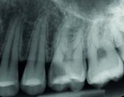 Aanbevelingen van een consensusbijeenkomst over weefselsparende manieren om carieus weefsel uit dentine te verwijderen