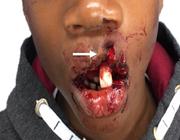Het belang van triage bij tandletsel: de verschillen tussen het ziekenhuis en de tandartspraktijk