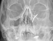 MRI van schouder leidt tot gezwollen oog en sinusproblemen