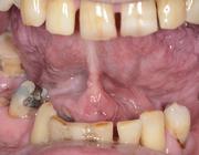 Factoren die bijdragen aan het delay in het diagnostisch proces van een mondholtetumor