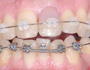 Voorbijgaande roze coronale verkleuring van een gebitselement tijdens orthodontische behandeling