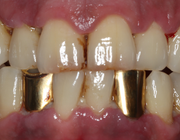 Stress en parodontitis