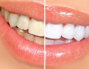 Wat kun je van whitening tandpasta verwachten?