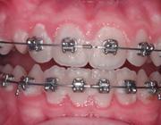 Preventie van wittevleklaesies die ontstaan tijdens een behandeling met vaste orthodontische apparatuur