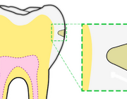 Behandeling van postorthodontische wittevleklaesies