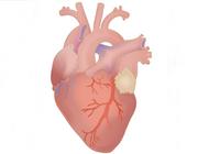 Beïnvloedt een harttransplantatie de mondgezondheid?