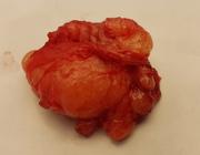 Perineurioma: een zeldzame intraorale wekedelentumor