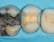 Restauratieve keuzes voor endodontisch behandelde gebitselementen in de posterieure zone