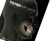 Gekantelde implantaten: stapsgewijze behandelconcepten