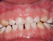 Kindvriendelijke restauraties van tijdelijke molaren met de Hall-techniek