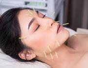 Helpt acupunctuur bij een droge mond?