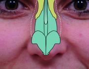 Cosmetische ingrepen tijdens orthognathische chirurgie
