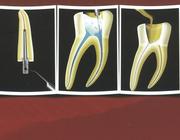 Endodontische herbehandelingen