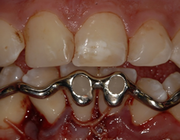 De driedimensionaal geprinte dentale spalk bij chirurgische behandeling van malocclusie na polytrauma