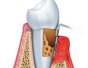 Parodontitis en systemische ziekten – van wetenschap naar praktijk