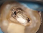 Endodontologie in beweging: nieuwe concepten, materialen en technieken 1. Hydraulische calciumsilicaatcementen