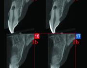 Endodontologie in beweging: nieuwe concepten, materialen en technieken 2. Conebeamcomputertomografie in de endodontische diagnostiek en behandelplanning