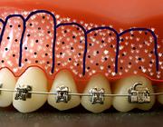 De versnelde orthodontische behandeling