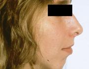 Proefschriften 25 jaar na dato 43. Disfunctie van het kaakgewricht en condylaire resorptie na orthognatische chirurgie