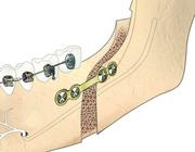 Verlenging van de onderkaak: bilaterale sagittale splijtingsosteotomie versus distractieosteogenese