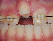 Autotransplantaten in plaats van implantaten? Het geheim van het parodontale ligament
