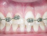 Orthodontische extrusie voorafgaand aan implantologie in de esthetische zone