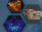 Brede beschrijving van de klinische orthodontie