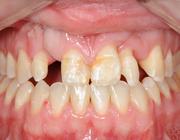 De gecombineerde orthodontisch restauratieve behandeling