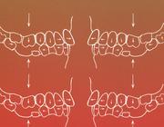 Prothetische behandeling van een aangetast occlusiesysteem