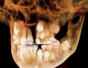 Interdisciplinaire orthodontisch-chirurgische behandeling van schisis van 9 tot 20 jaar