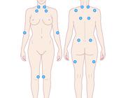 De (vermeende) pathologische invloed van fibromyalgie op het orofaciale systeem