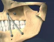 Behandeling van collum mandibulaefracturen