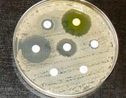 Medicamenten en mondzorg 2. Een geoptimaliseerd antibioticabeleid in het belang van de patiënt