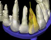 De synergie van radiologie en CAD/CAM