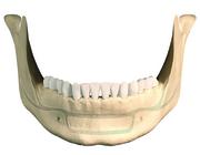 Proefschriften 25 jaar na dato 46. Behandeling van mandibulafracturen