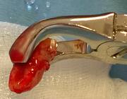Recente toename van reguliere extracties in mka-chirurgie onderzocht